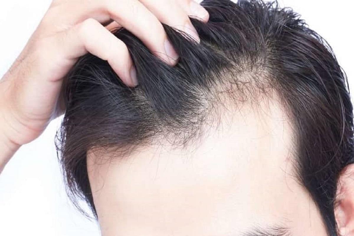 استرس مزمن باعث ریزش مو میشود!